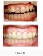 <b>牙周病对比图</b>