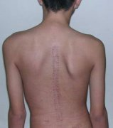 <b>脊柱侧弯患者症状图</b>